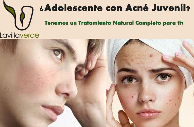 tratamiento antiacné